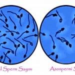 Azoospermie in Zypern | Die Vorteile azoospermie Methode