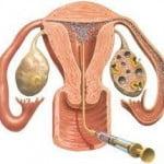 Künstliche Befruchtung (impfung)