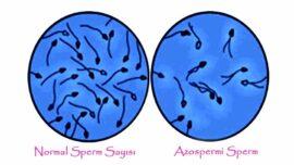 Azoospermie in Zypern   Die Vorteile azoospermie Methode