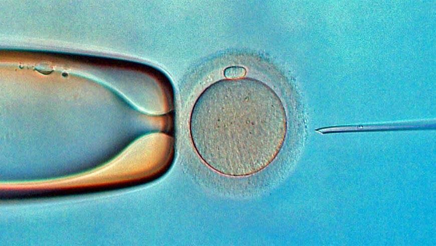 Mikroinjektion in Zypern ( Befruchtungsprozess   ICSI )